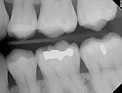 Digital Dental X-Rays Farmington Hills MI - Pesis Family Dental - digital-xray